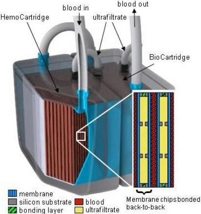 Cuando sea miniaturizado, el riñón artificial podría implantarse en el paciente