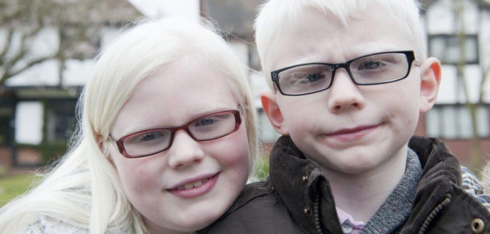 Ley para albinos